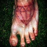 Bloody skin scarification diamond on foot