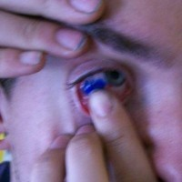 Blue tattoo on eyeball